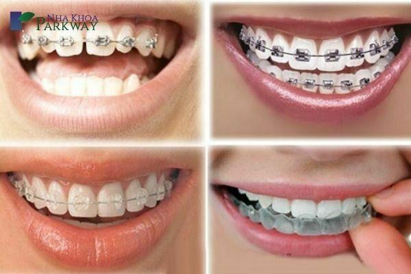 ảnh hưởng niềng răng