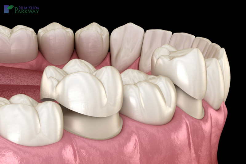 bảng giá trồng răng toàn sứ bao nhiêu 1 cái