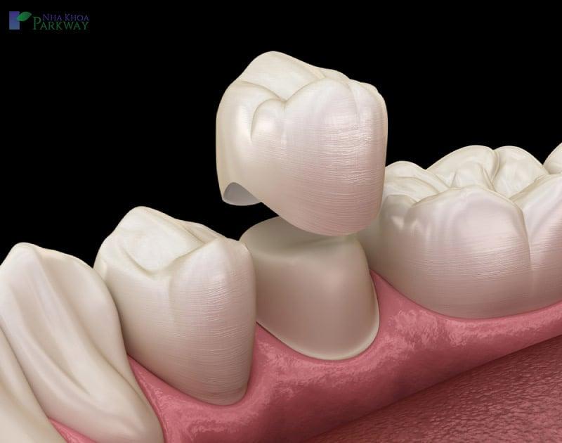 các loại răng sứ là gì