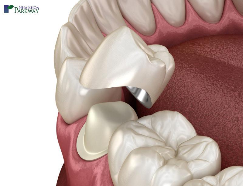 các loại răng sứ nào đẹp nhất kim loại