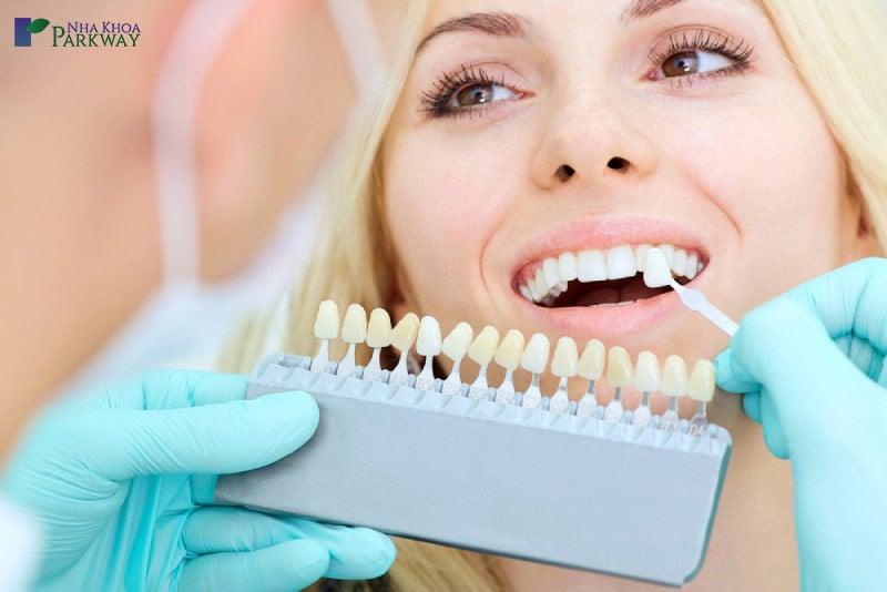 chi phí trồng răng sứ bao nhiêu tiền