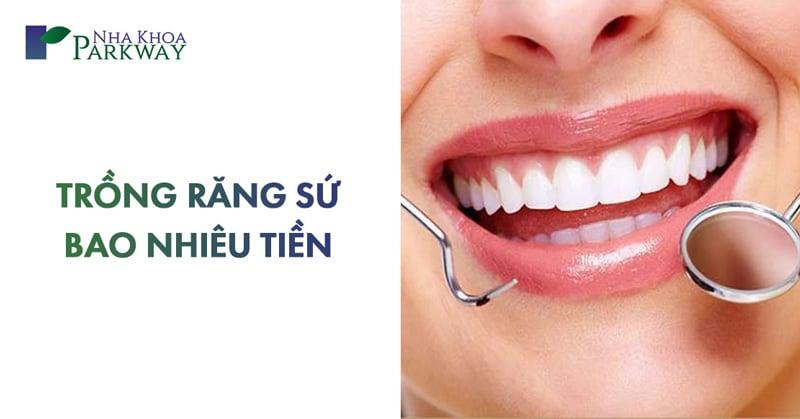 chi phí trồng răng sứ giá bao nhiêu 1 chiếc