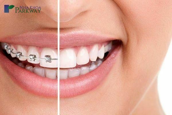 Hạn chế tác hại của niềng răng bằng cách lựa chọn đơn vị niềng răng uy tín