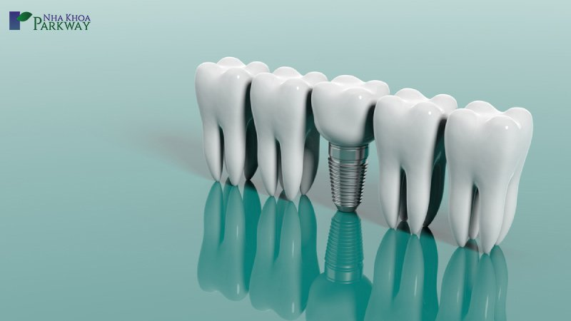 làm implant là xu hướng hiện tại
