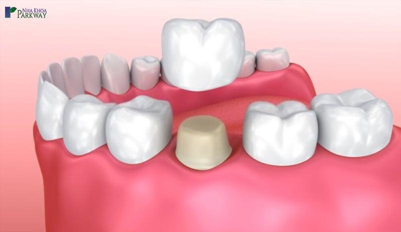 làm răng sứ thẩm mỹ loại nào đẹp nhất ceramill