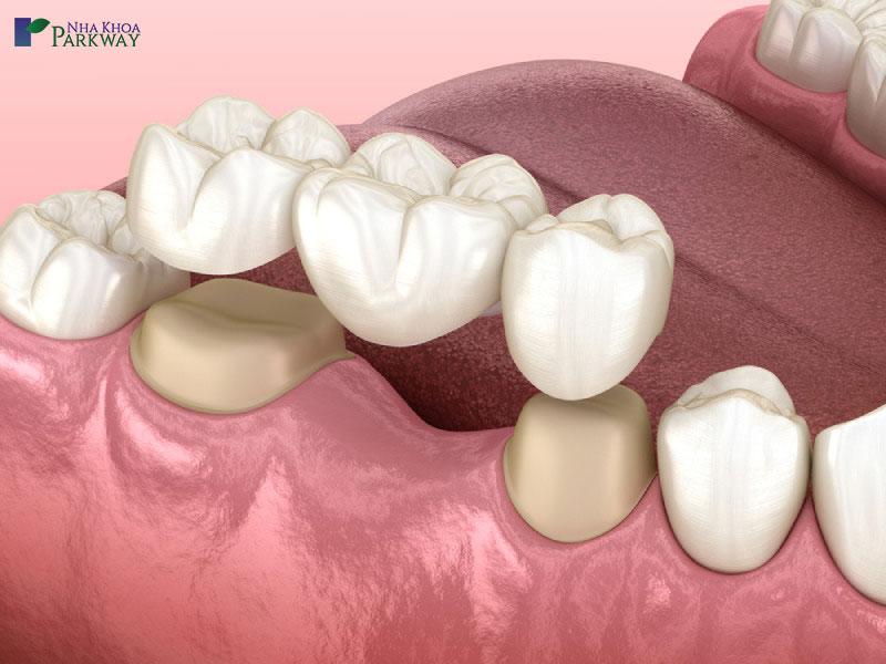 lưu ý khi trồng răng cầu răng sứ