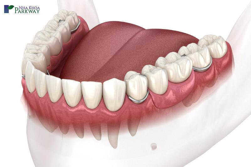 nên trồng răng giả tháo lắp bán phần