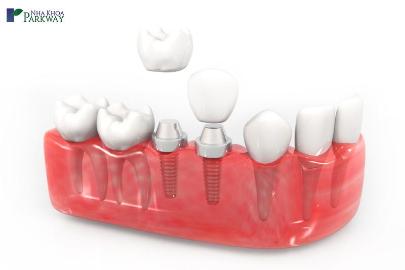 nên trồng răng loại nào tốt