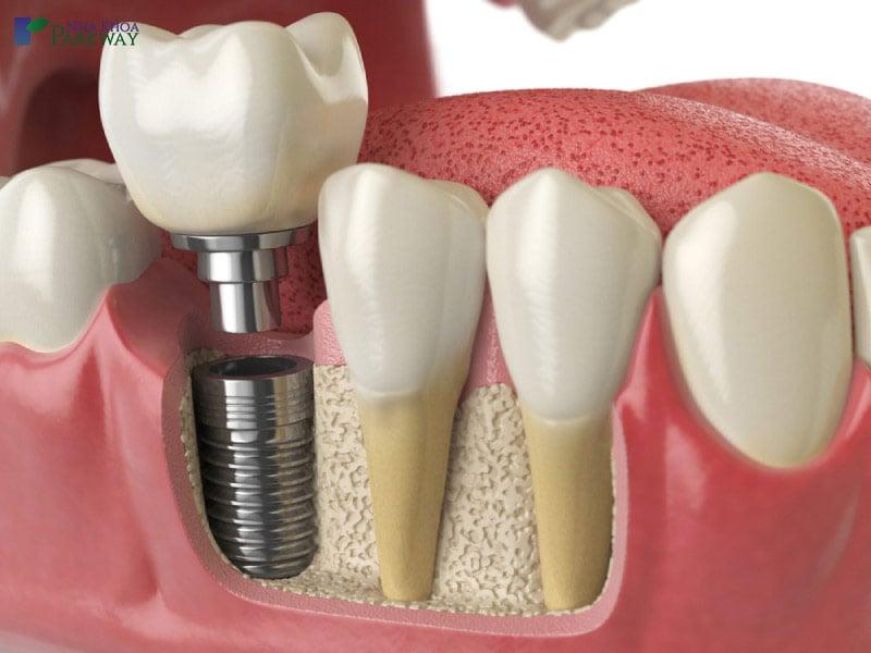 phương pháp cấy trụ implant có đau không