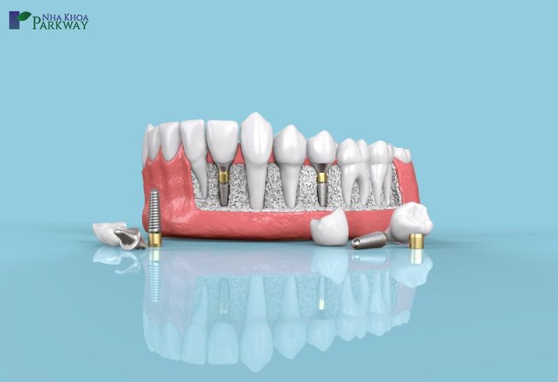 quy trình trồng răng implant là như thế nào