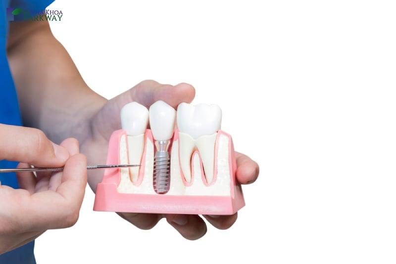 quy trình trồng răng implant mất bao lâu thời gian