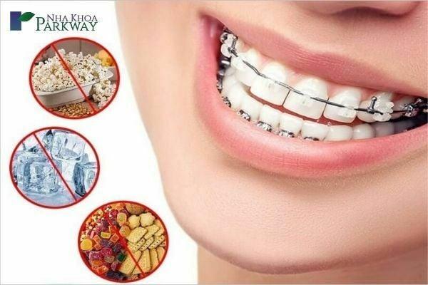 Niềng răng nên ăn gì và kiêng gì?