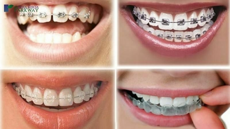 tìm hiểu về niềng răng chỉnh nha