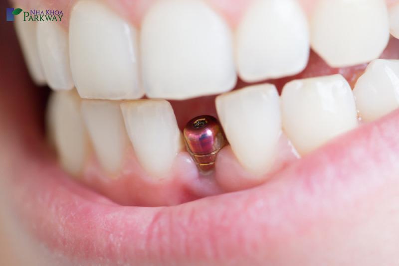 trồng implant để có nụ cười tươi