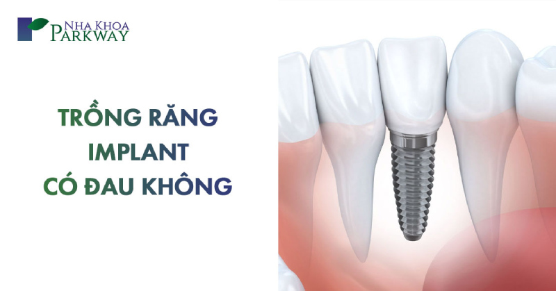trồng răng implant có đau không