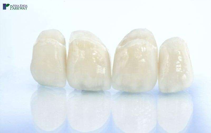 trồng răng sứ thẩm mỹ tốn bao nhiêu tiền