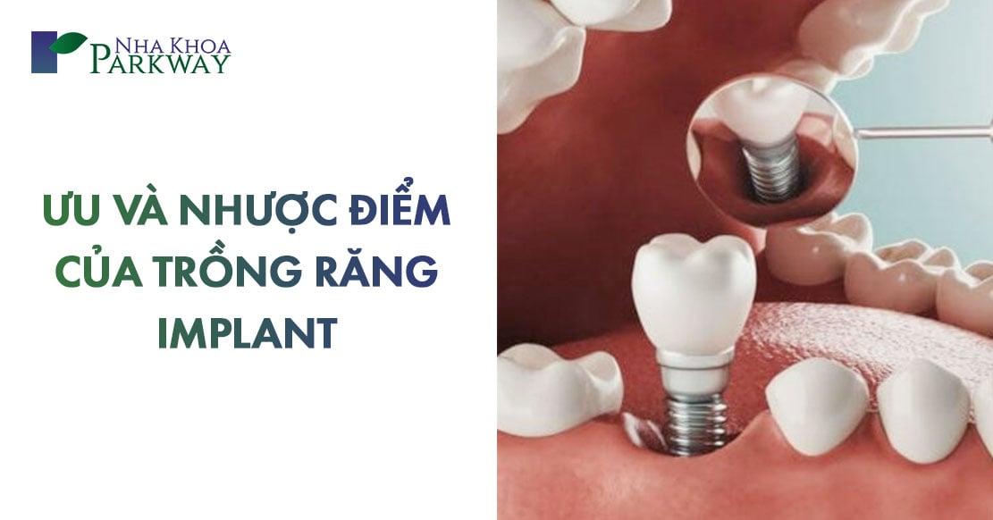 ưu và nhược điểm của trồng răng implant