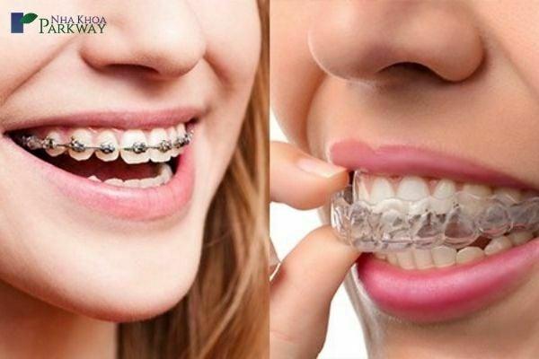 yếu tố ảnh hưởng giá niềng răng