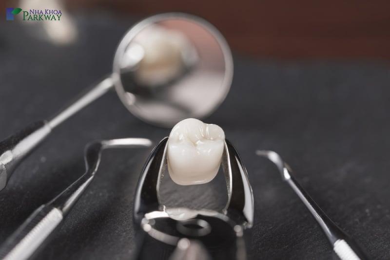 cách trám răng thẩm mỹ như thế nào