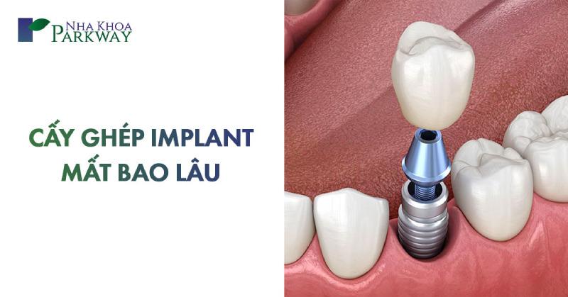 cấy ghép implant mất bao lâu thời gian