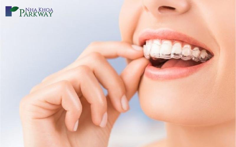 Yếu tố ảnh hưởng đến chi phí niềng răng trong suốt invisalign
