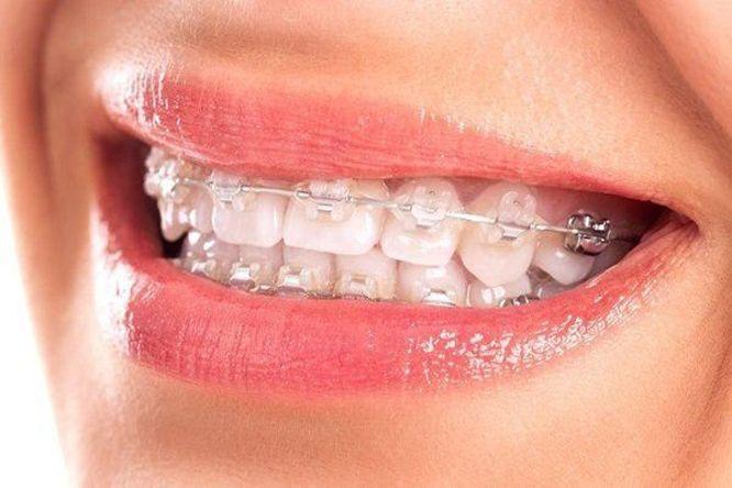 Yếu tố ảnh hưởng đến giá niềng răng mắc cài sứ