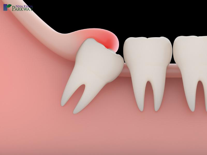 đau nhức sau khi nhổ răng khôn
