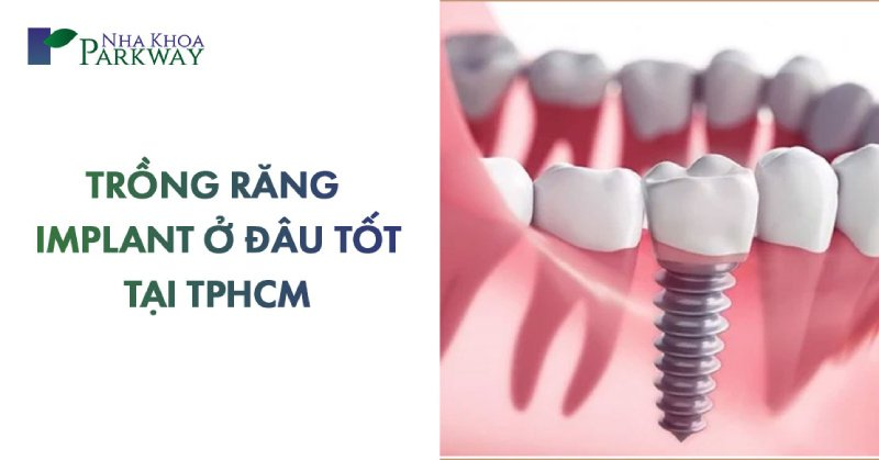 địa chỉ trồng răng implant ở đâu tốt tại tphcm