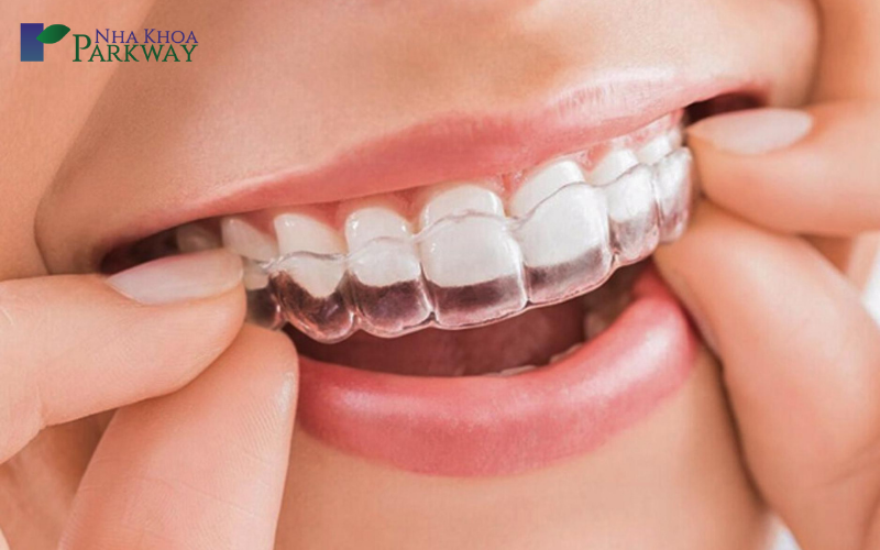 Giá niềng răng invisalign bao nhiêu