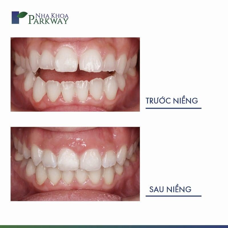 kết quả niềng răng invisalign