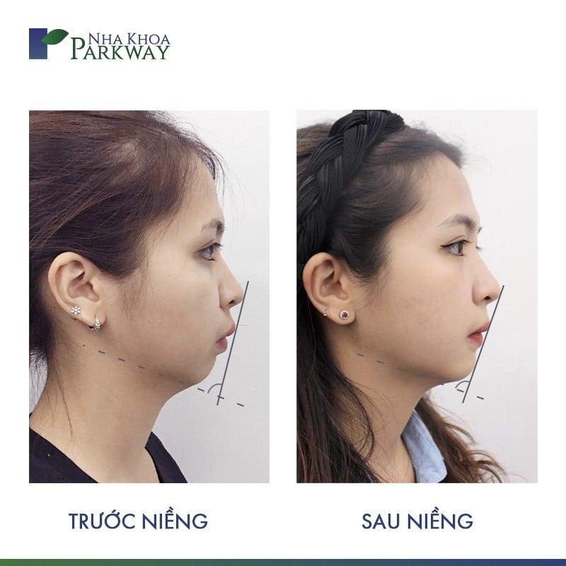 hiệu quả trước và sau niềng răng invisalign