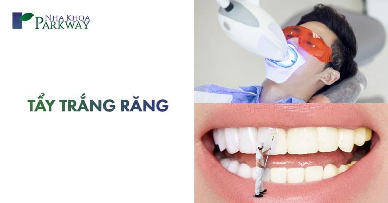 lưu ý khi tẩy trắng răng là gì