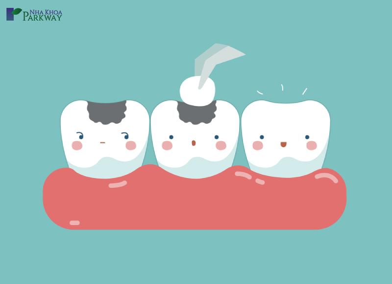lưu ý khi trám răng thẩm mỹ là gì