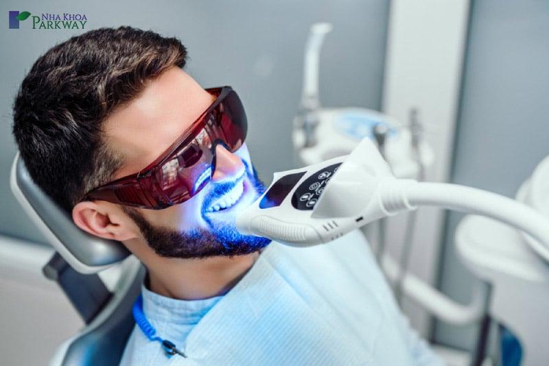 lưu ý trước khi tẩy trắng răng