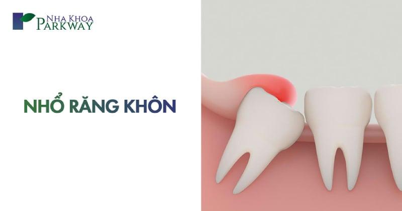 lưu ý trước sau khi nhổ răng khôn là gì
