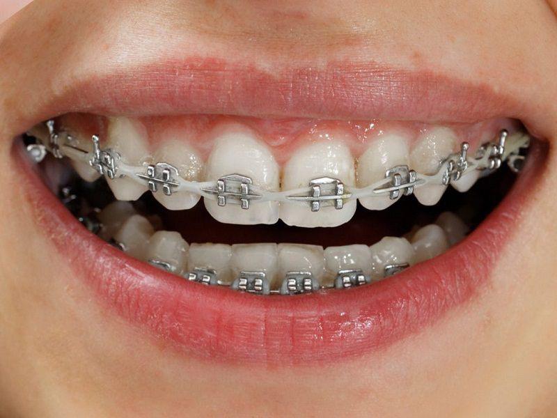 niềng răng mắc cài là gì