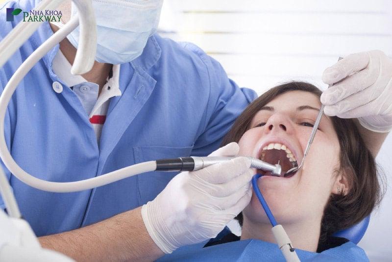 phương pháp trám răng là gì