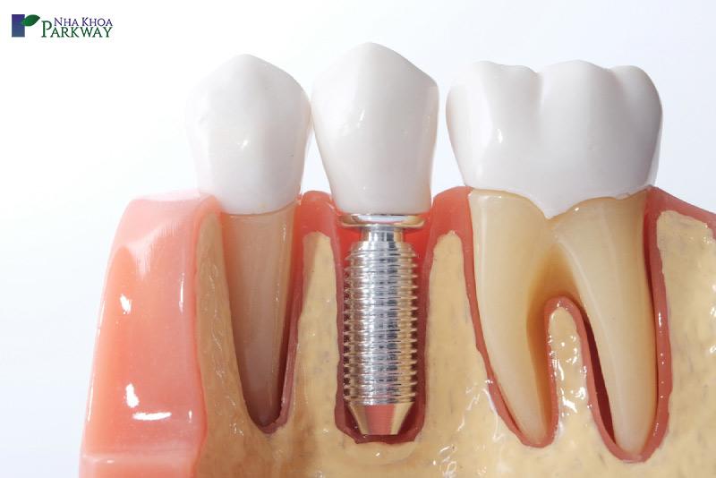 quy trình làm răng implant mất thời gian bao lâu