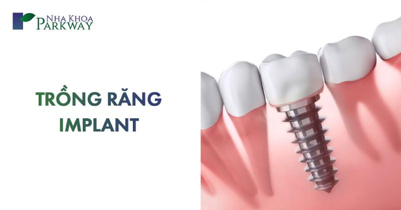 quy trình trồng răng implant là gì