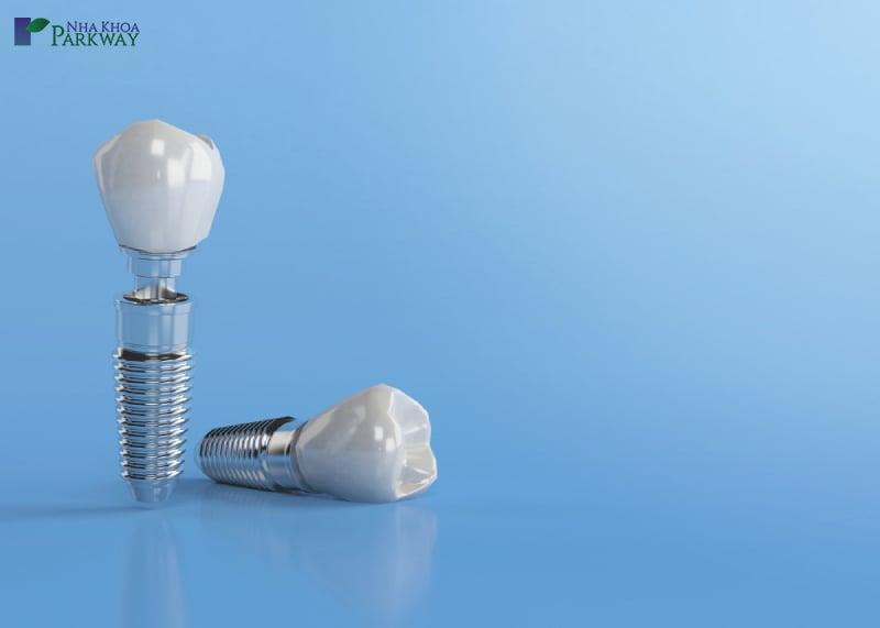 thời gian cấy ghép implant mất bao lâu