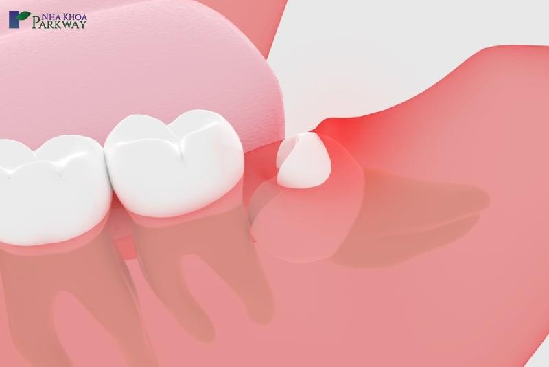 tiểu phẫu răng khôn có đau nhức không