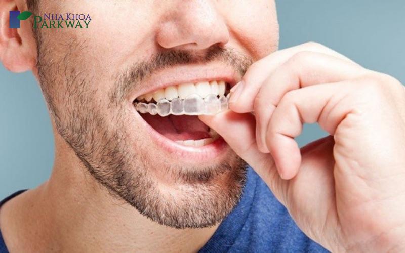 Ưu điểm niềng răng invisalign