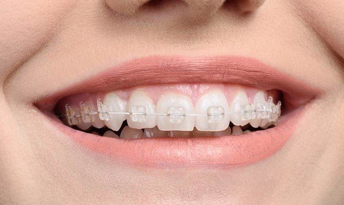 ưu điểm niềng răng mắc cài